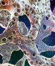 Головокружение и остеопороз – звенья одной цепи?
