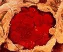 Новые технологии обеспечат раннюю диагностику рака ротовой полости