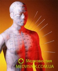 Экзогенные факторы. Китайская медицина