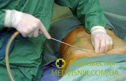 Липосакция снижает риск развития заболеваний сердечно-сосудистой системы