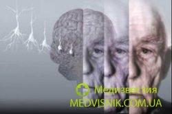Болезнь Альцгеймера вылечат только в 2025 году