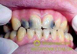 Межзубной кариес — когда стоит обращаться к дантисту