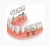 Как происходит имплантация зубов